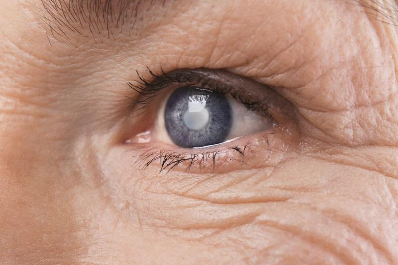 درمان نابینایی ناشی از سرطان