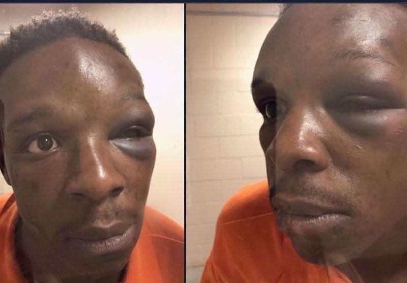 چند پلیس آمریکایی یک سیاه پوست را تا سرحد مرگ کتک زدند