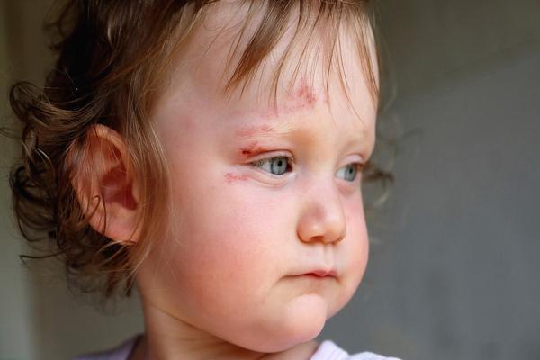 ضربه به سر نوزاد؛ علائم هشدار دهنده و خطرناک چیست؟